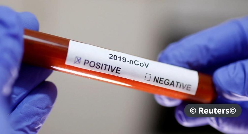 Ministério da Saúde confirma segundo caso de coronavírus no Brasil.